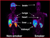 Whole body PET scans showing the distribution of radiolabeled monamine oxidase in one of the nonsmokers and one of the smokers. Red is the highest radiotracer concentration; purple is the lowest. Images are scaled so that they can be compared directly.